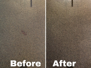 Wine Stain Before and after